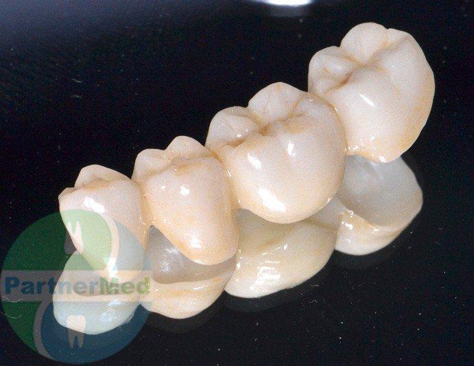 Протез Мостовидный Зубной