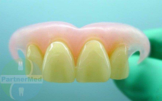 Бабочка на передние зубы