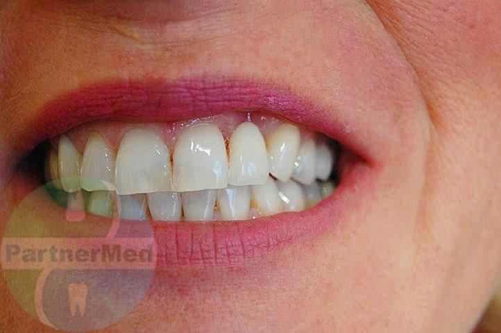 Адгезивне протезування зубів