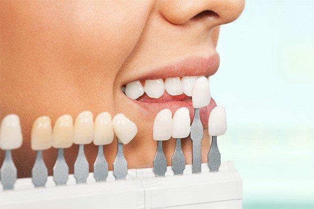 Картинки по запросу Что нужно учесть при протезировании зубов