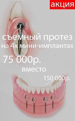 140x140