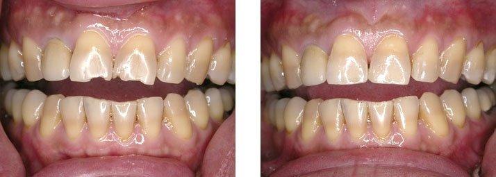 Этапы реставрации зубов
