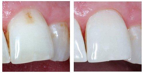 Лечение зубов без сверления в красноярске