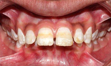 отбеливание зубов и удаление зубного камня