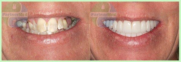 вставные зубы фото