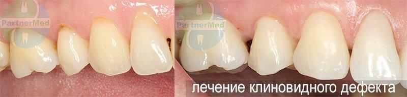 Как вылечить клиновидный дефект зубов 91