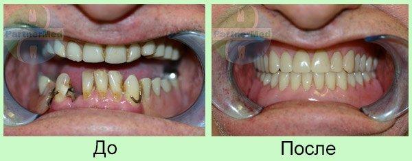 вставные зубы фото до и после
