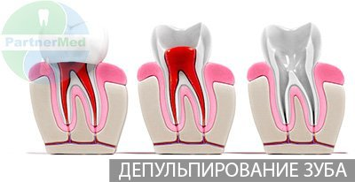 После депульпации болят все зубы