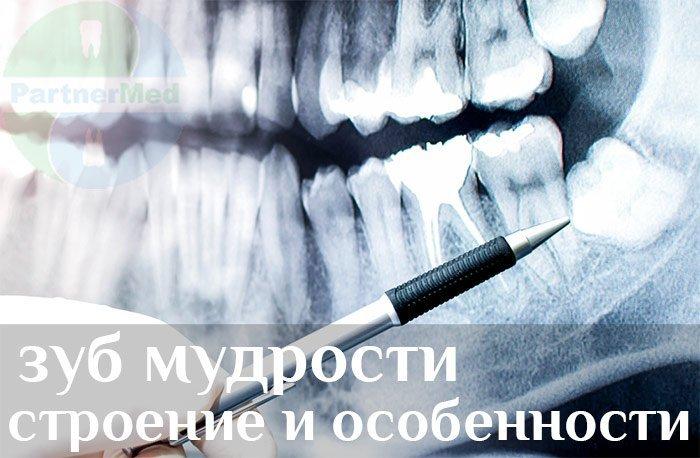 Зуб мудрости удалять или лечить