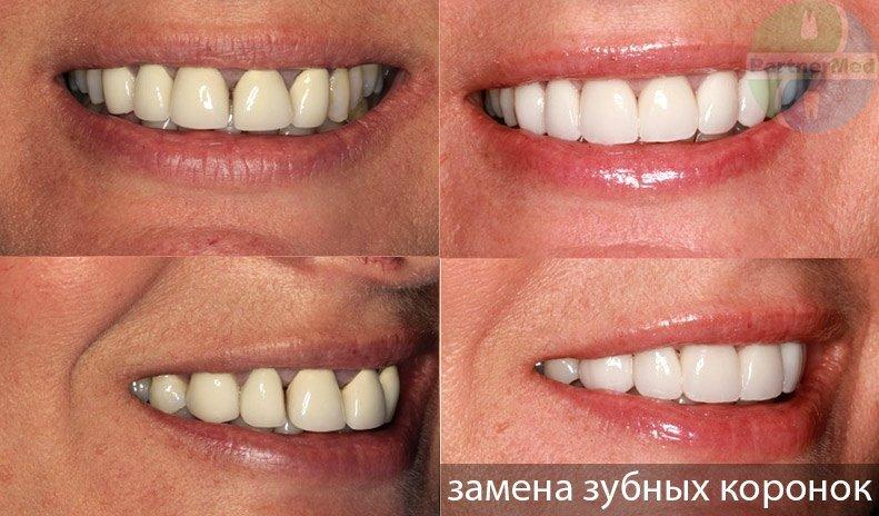 замена зубных коронок фото