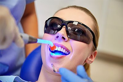 пломба переднего зуба