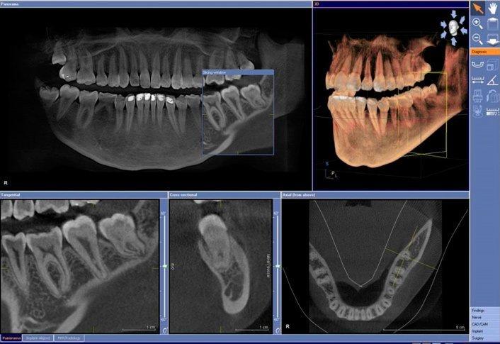 Рентген челюстного сустава тюмень строение коленный сустав человека