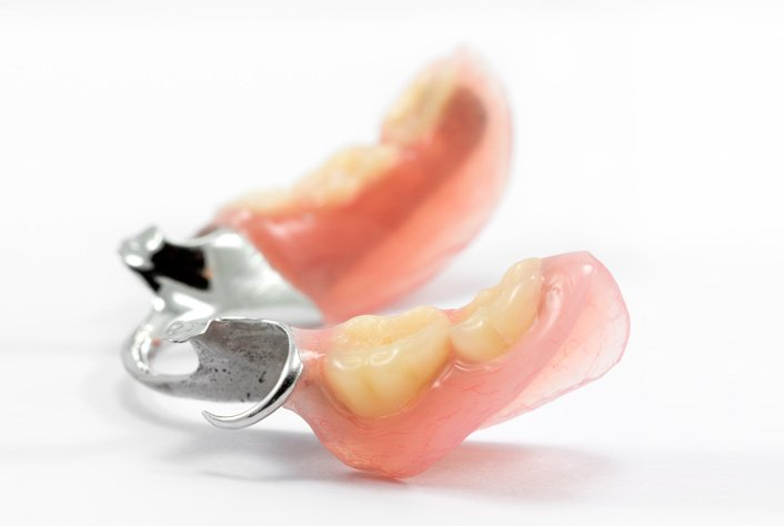 Какие зубные протезы лучше поставить: виды, сравнение 53