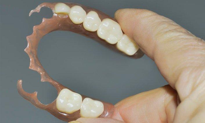 Артроз челюстно-лицевого сустава - какой врач лечит
