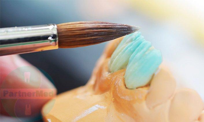 Протезирование передних верхних зубов - ПрофиМед