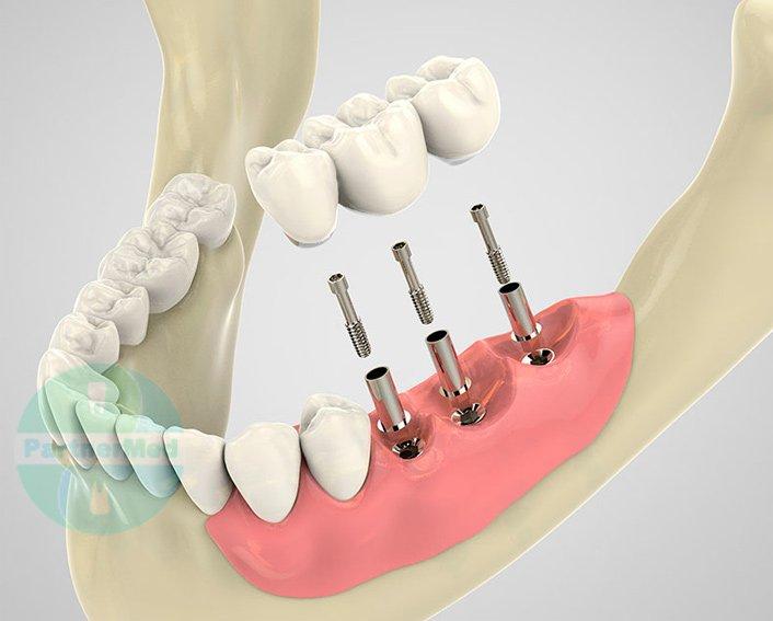 Виды несъемного протезирования зубов фото 141