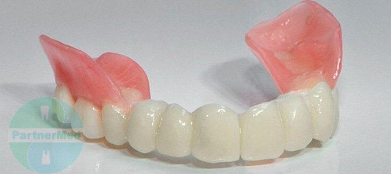 Несъемные зубные протезы цены в москве