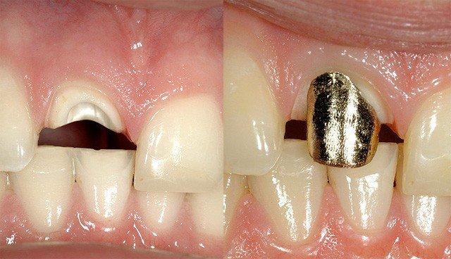 Востоновление сгнившего зуба фото 128-333