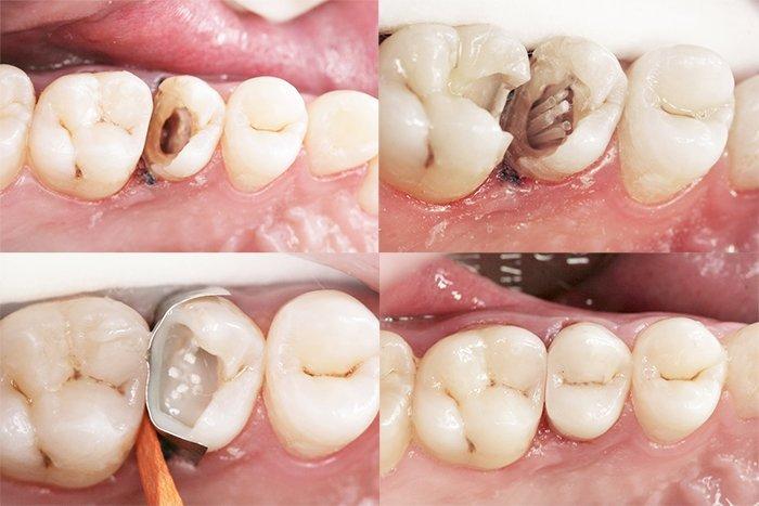 восстановление зуба на штифте фото