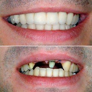 фото до и после протезирования передних зубов