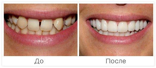 Временная накладка на зубы на время протезирования