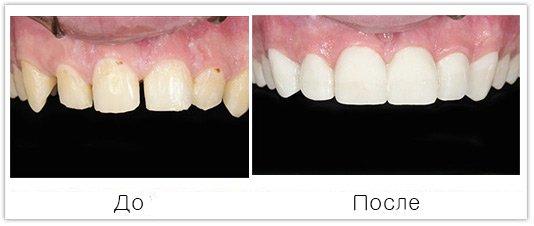 протезирование передних зубов винирами