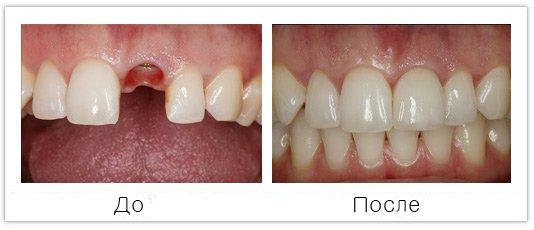протезирование передних зубов имплантами