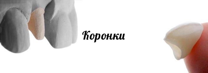 Сколько стоят виниры в красноярске