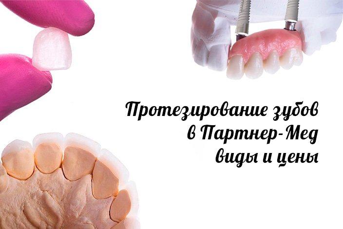 Протезирование зубов виды и цены в Нижний Новгород
