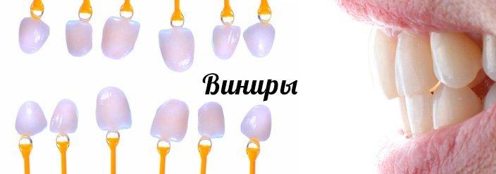 Протезирование зубов винирами