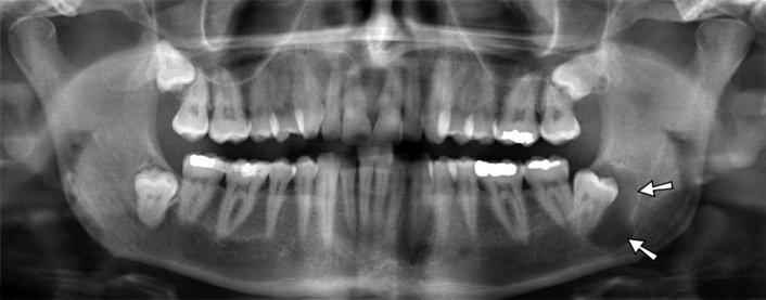 фото киста зуба на рентгене