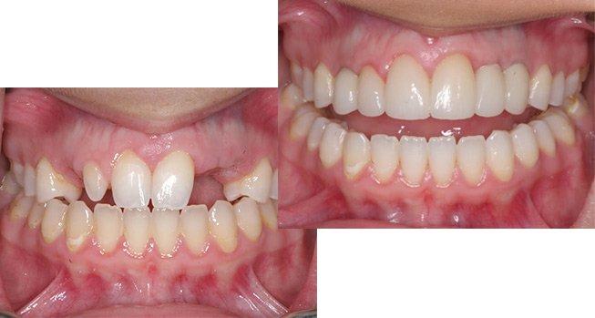 Цены на импланты зубов