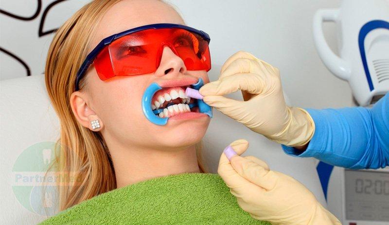 отбеливание зубов стоит москва