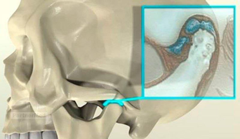 Диагностика сустава в перми артроз коленного сустава деформация