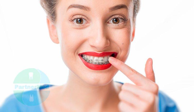 Сколько стоят лингвальные брекеты на зубы