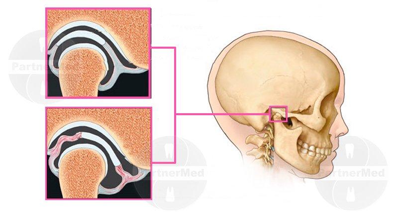 Острый и хронический височно нижнечелюстной артрит