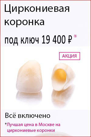 Виниры на зубы цена тобольск