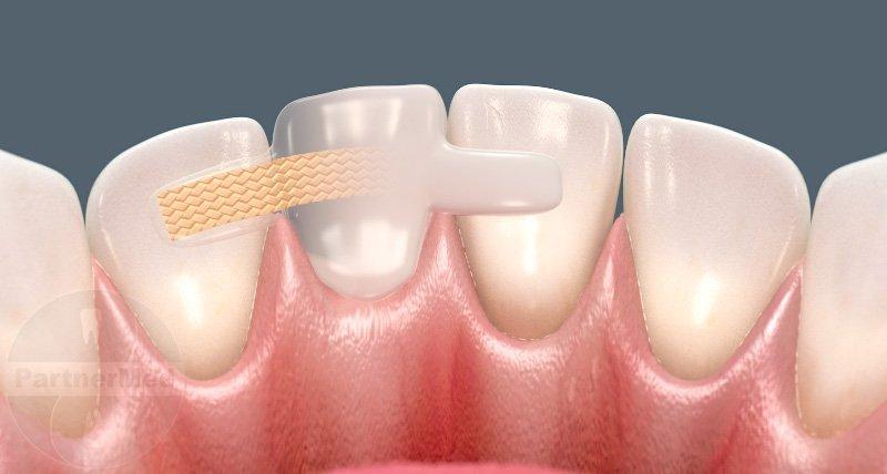 Опорные зубы под протез