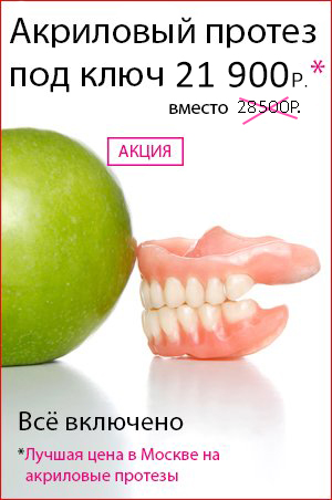 Виниры для зубов пенза цена отзывы