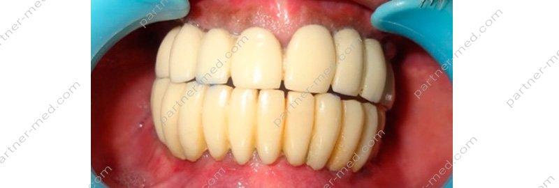 Анализ крови для имплантации зубов цена