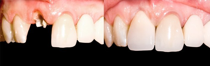 стоимость протезирования зубов в г шуя