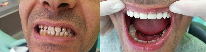 Лечение зубов арзамас цены