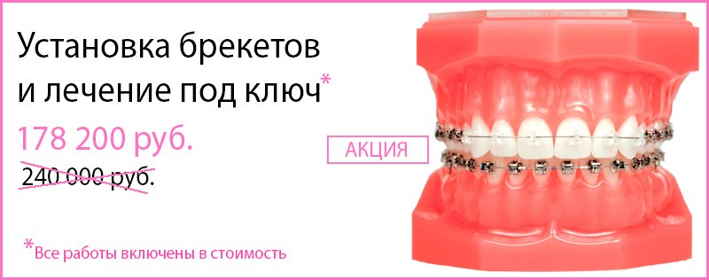 Брекеты в Ярославле. Цена установки и снятия брекетов на зубы || Сколько стоит поставить брекеты в ярославле