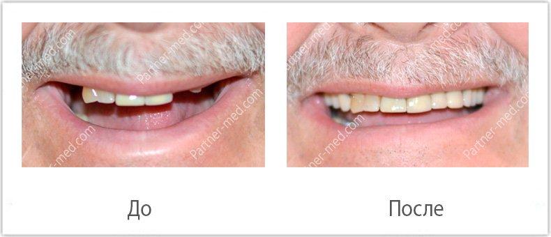 Изготовление бюгельного протеза на верхнюю челюсть