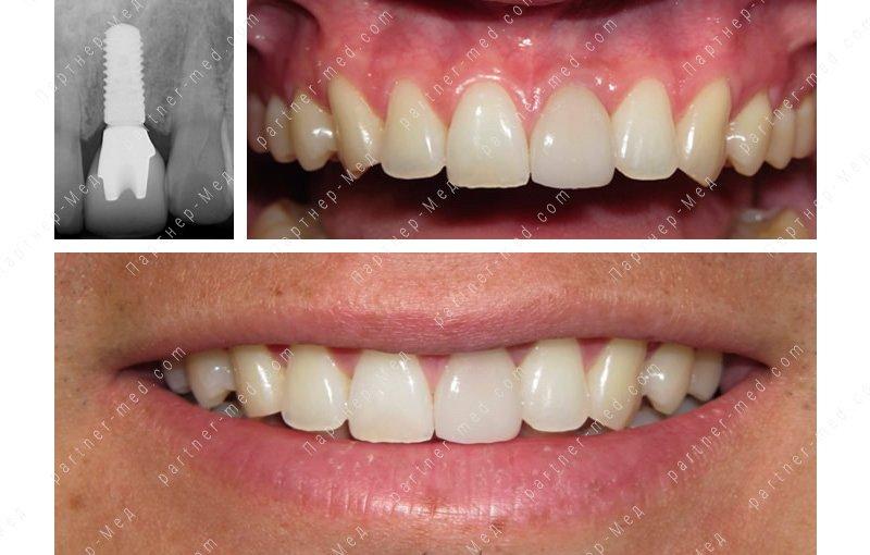 имплант на переднем зубе