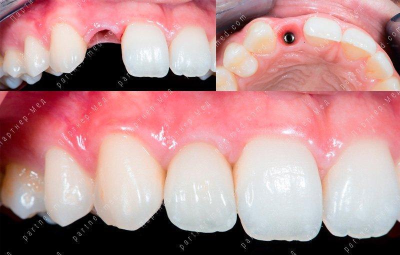 Имплантация передних зубов: какие импланты поставить на передние верхние и нижние, особенности одномоментного протезирования