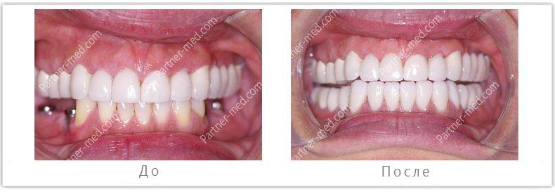 установка имплантов на жевательные зубы