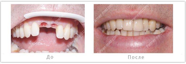 установка двух имплантов с коронками на верхнюю челюсть на передних зуба