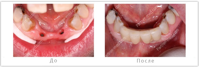 поставлено 2 импланта на нижние передние зубы