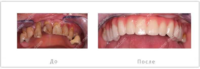 удаление всех зубов на верхней челюсти и установка четырех имплантов с несъемным протезом